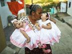 巴西小脑症畸形双胞胎庆一周岁生日-猎奇图片